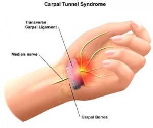 Carpal tunnel syndrome is treated at Acupuncture Santa Cruz